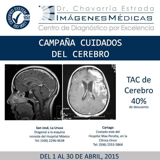 Campaña TAC Cerebro