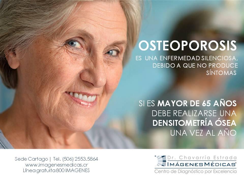 arte-osteoporosis