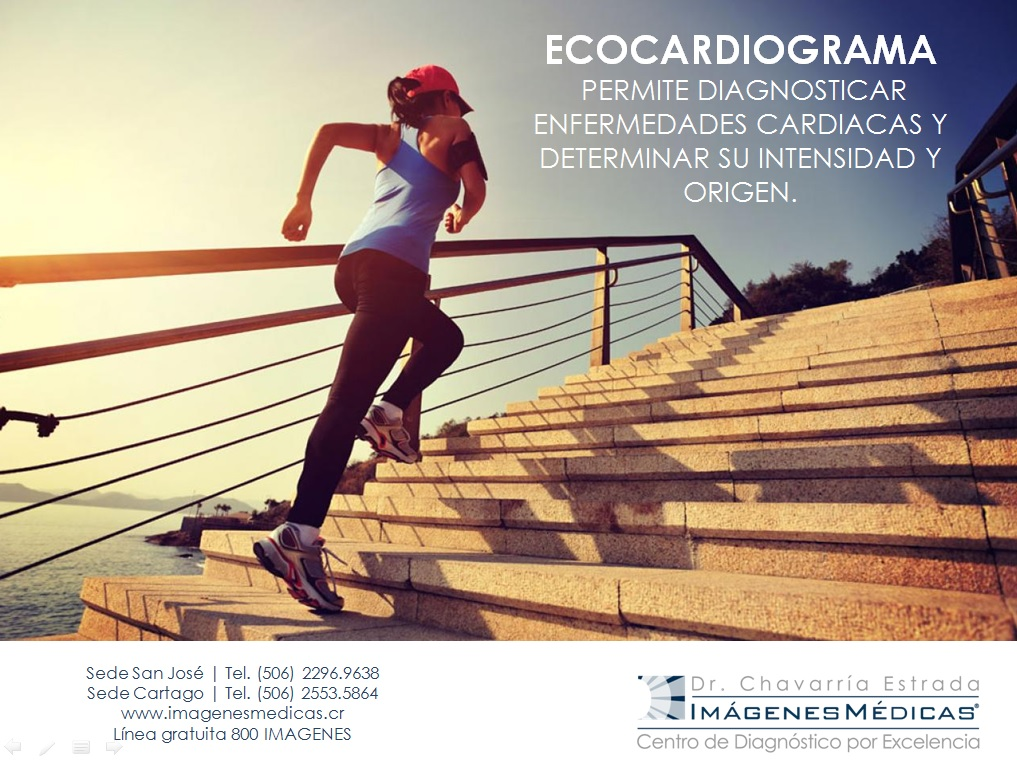 ecocardiograma-001