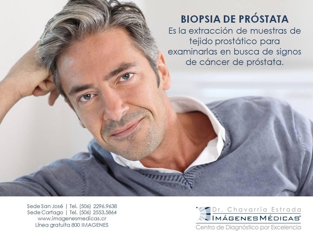 bipsia-de-prostata