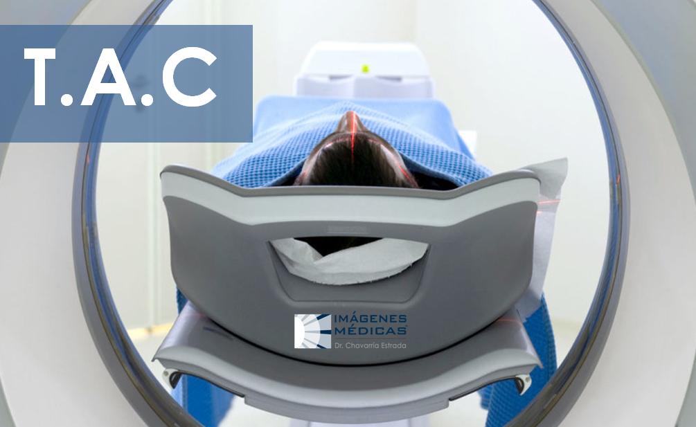 ¿Por qué una Tomografía Axial Computarizada (TAC
